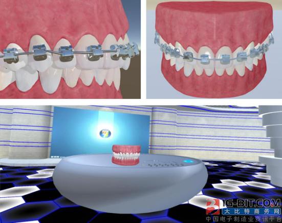 维尔盛视布局VR+口腔,帮助医生在虚拟现实环境中进行手术方案设计和模拟操作