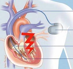 置入传统起搏器或除颤器的患者是否会减寿?