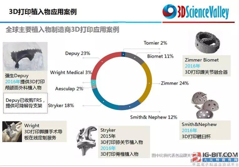 2017年国内企业在骨科3D打印领域取得的进展