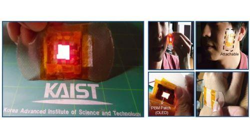 """韩研究员发明""""OLED贴片""""  利用有机光源恢复伤口"""