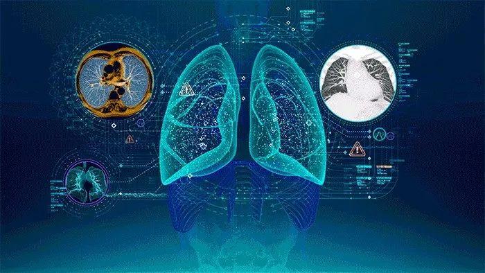 AI 医疗影像科普篇——从过去到未来