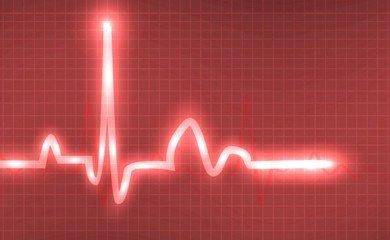乐普医疗AI心电图分析和诊断产品的产业化之路