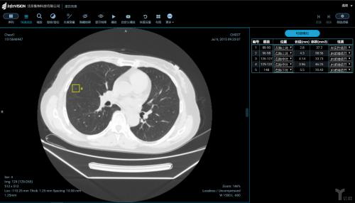 医学影像的人工智能之路 想要盈利还需慎重考虑