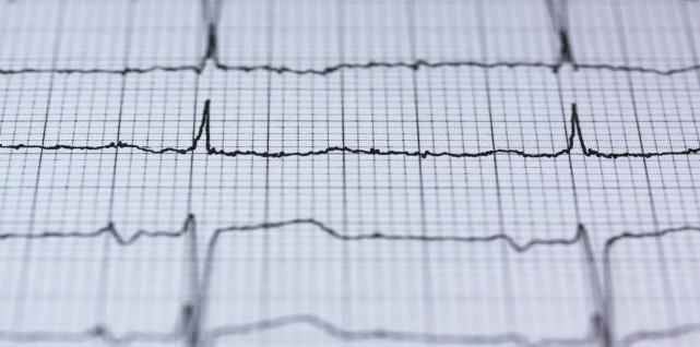 这种人工智能技术可以帮助识别潜在心脏病