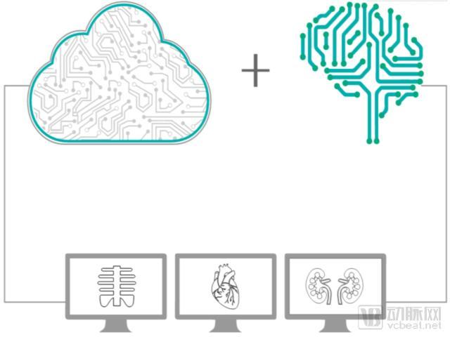 印度医疗AI初创公司 用AI和云计算辅助放射医生做诊断