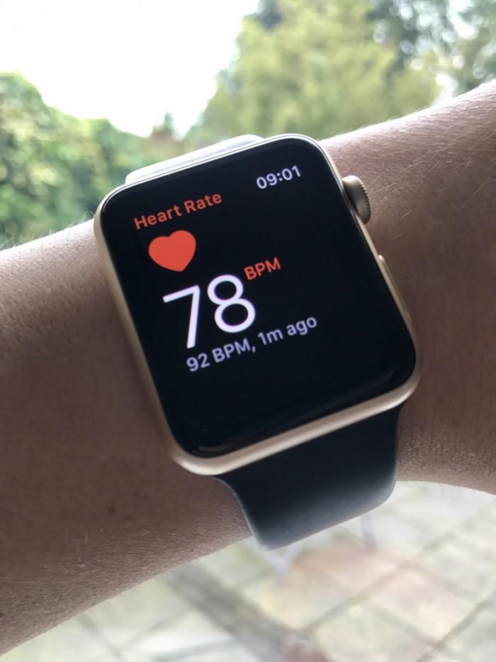 苹果手表新功能:可准确判定帕金森症发病状态