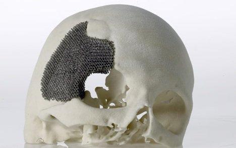 【解析】3D打印技术在生物医用材料产业应用展望