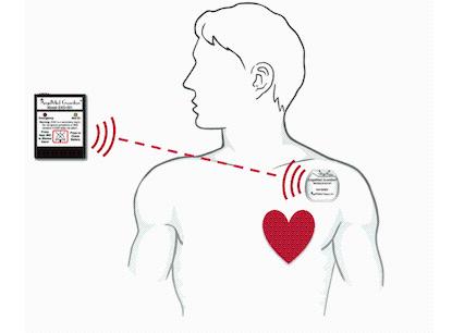 AngelMed Guardian植入式设备获批准 有助于提前检测到心脏病