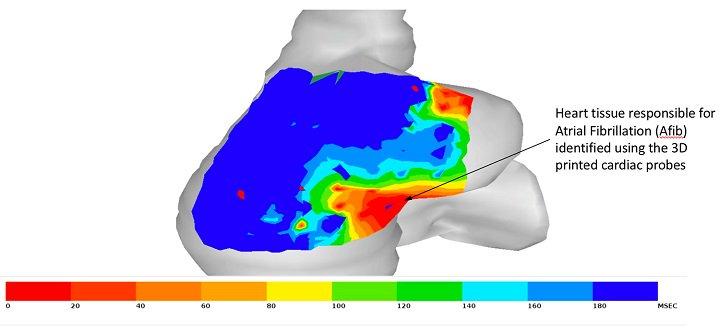 研究人员使用3D打印创建更好的心脏导管设备