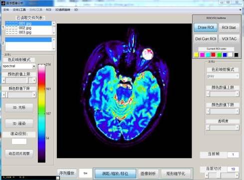 世界医学影像领域2023年将达到每年20亿美元