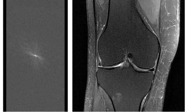 Facebook和纽约大学医学院合作研究 缩短MRI成像时间