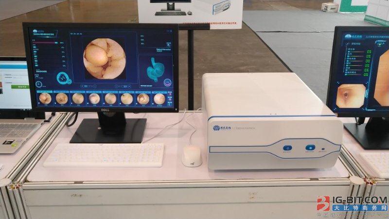 """""""四川造""""人工智能医疗设备亮相 部分设备预计2019年进入临床应用"""
