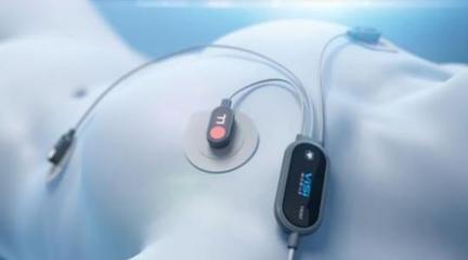 日本用新电池技术研制可穿戴超薄心电监测设备
