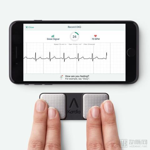 最新研究数据表明,AliveCor智能手机心电图可媲美传统12导联心电图