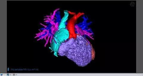 Stratasys 将与Materialise Mimics inPrint软件共同为医院提供3D打印医疗模型解决方案