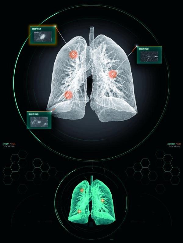 依图医疗发布全球首个基于医疗AI技术的癌症筛查智能诊疗平台