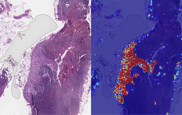 当 AI 医疗成为热点,噱头与实干如何区分?