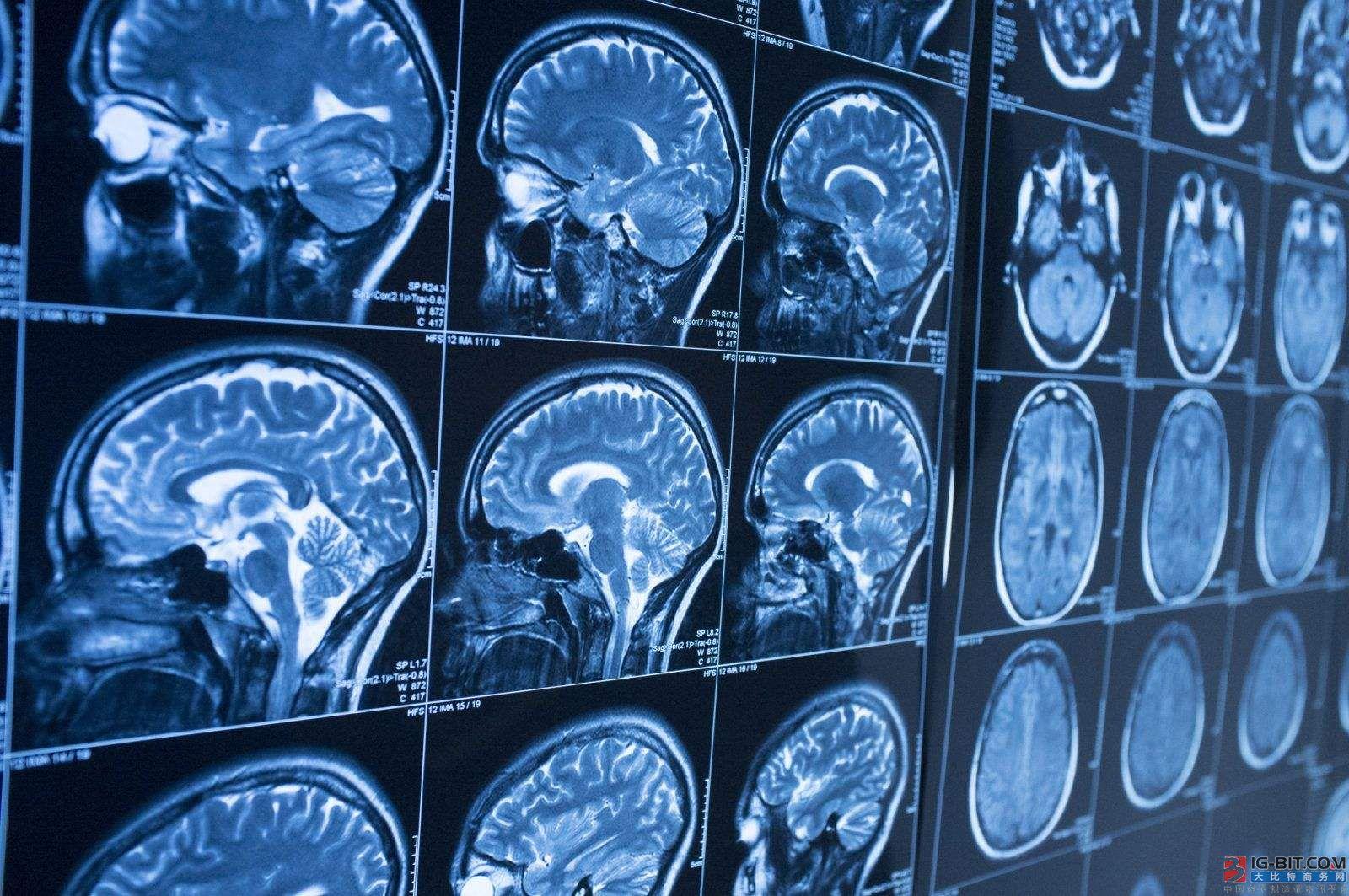 AI+医疗的道路为何坎坷不安?
