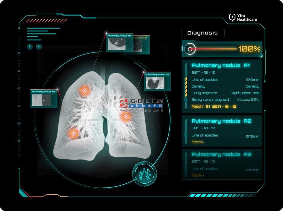 医liao器xie+ren工智能会是xia一ge发展趋势?