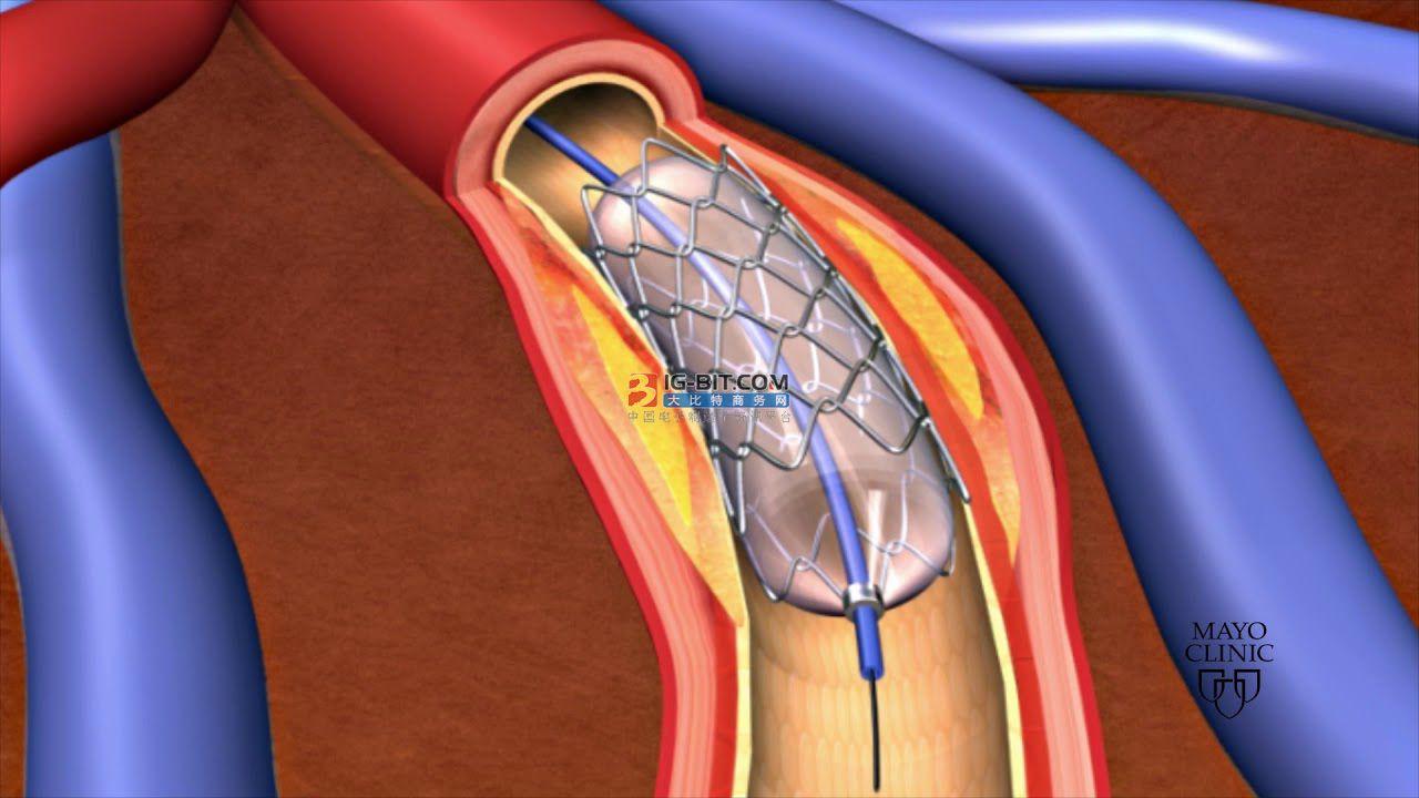 研发投入激增48%,赛诺医疗全面出击心脑血管支架产品?