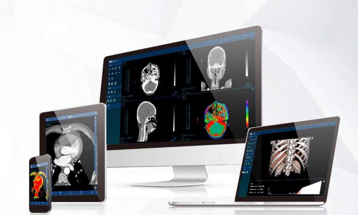 远程医学影像的市场到底在哪里?