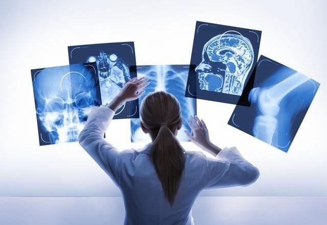 我国医学影像产业现状及发展趋势解析