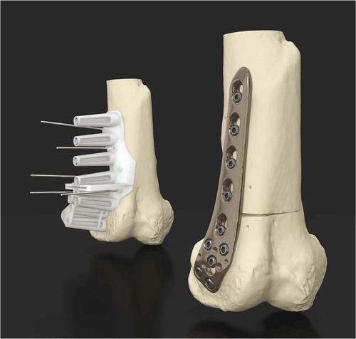 3D打印医疗器械