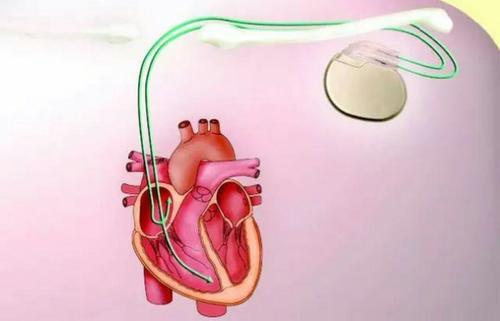 国内外的心脏疾病相关的医疗器械公司排名和介绍