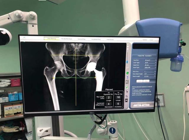 38分钟精准手术!机器人参与老年人全髋关节置换